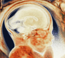 MRI scan of human fetus at 35 weeks and 1 day