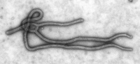 Transmission electron micrograph of the Ebola virus.