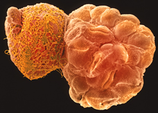 blastocyst hatching from its shell