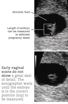 first ultrasound during pregnancy