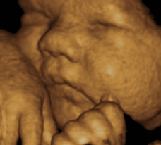 ultrasound of human fetus 38 weeks and 2 days
