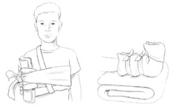 Use stiff items to create splints that immobilize joints.